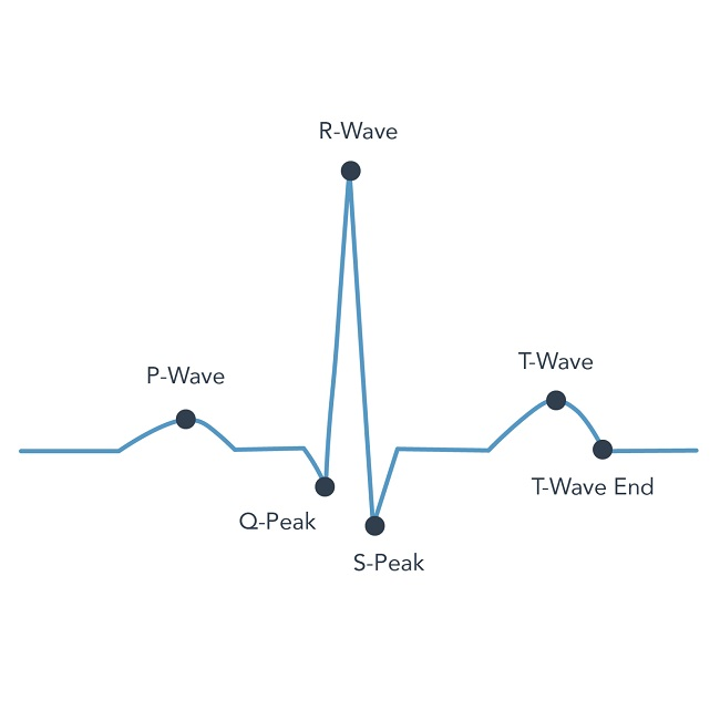 heartkey Automated Waveform Detection